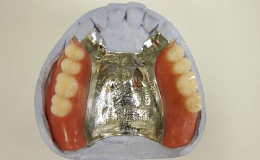 金属入れ歯